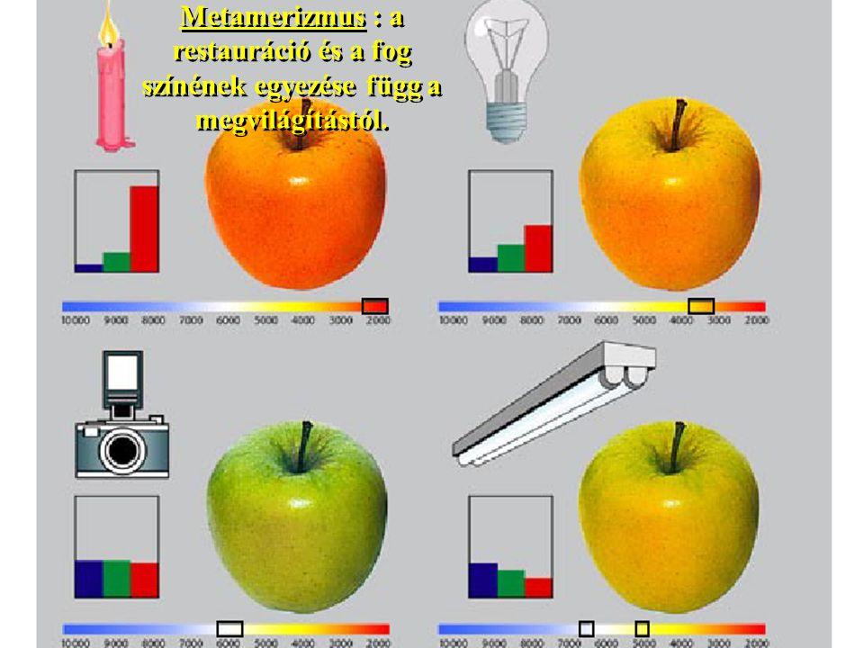 Metamerizmus : a restauráció és a fog színének egyezése függ a megvilágítástól.