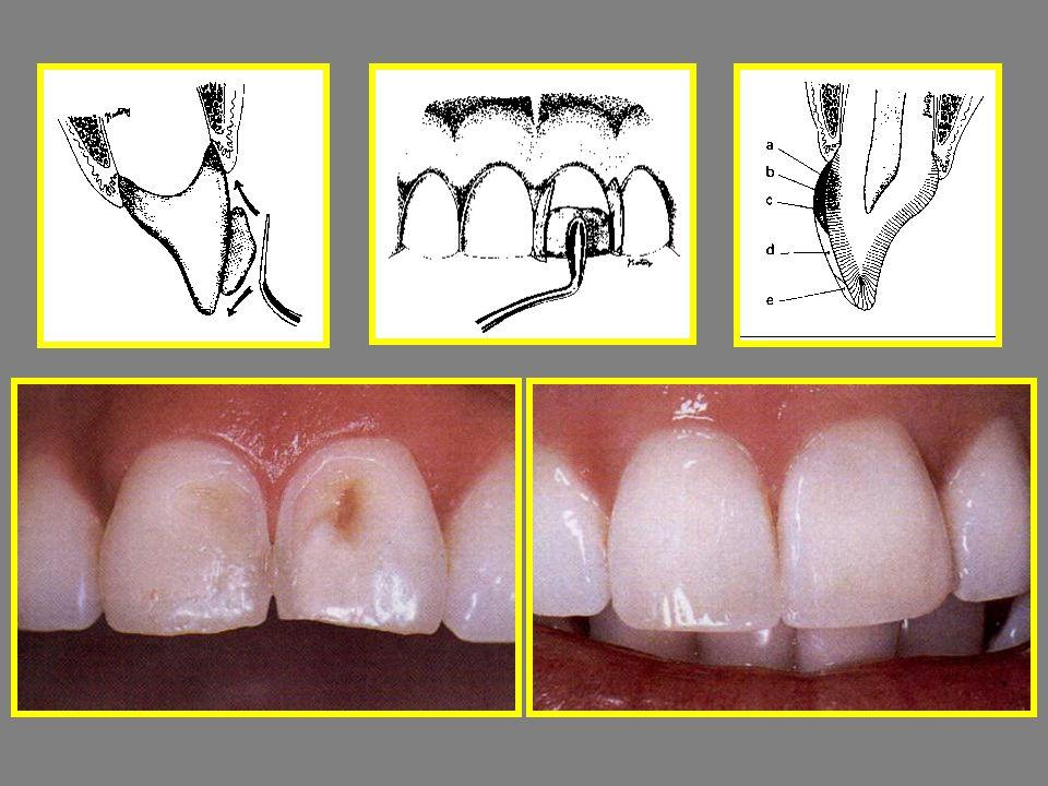 Chromaticity – színtelítettség: UD 1-6 Value – fényesség: GE 1-3 Intensive – intenzív foltok: IM-IW Opalescents – Opálos zománc: OBN, OW, OA, OG Characterzation : fehér, sárga, narancs kék, barna, sötétbarna UD: univerzális dentin GE: Generic Enamel - általános zománc IM: Intensive Milky, IW: Intensive White OBN: opalescent blue naturel OW: fehér, OA: borostyán, OG: szürke