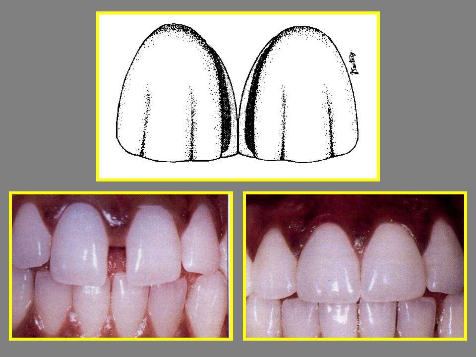 Lorenzo Vanini Chromaticity – színtelítettség Value – fényesség Intensive – intenzív foltok Opalescents – Opalescencia Karaterzáció UD1-6 : univerzális dentin GE 1-2-3 : általános zománc (1-id ő s, 2-feln ő tt, 3-gyerek) IM : Intenzív Milky (meleg, tejes fehér) IW : Intenzív White (hideg, fehér) OBN : Opalescens Blue Naturel OG : Opalescens Grey OA : Borostyán Opalescens OW : Opalescens White