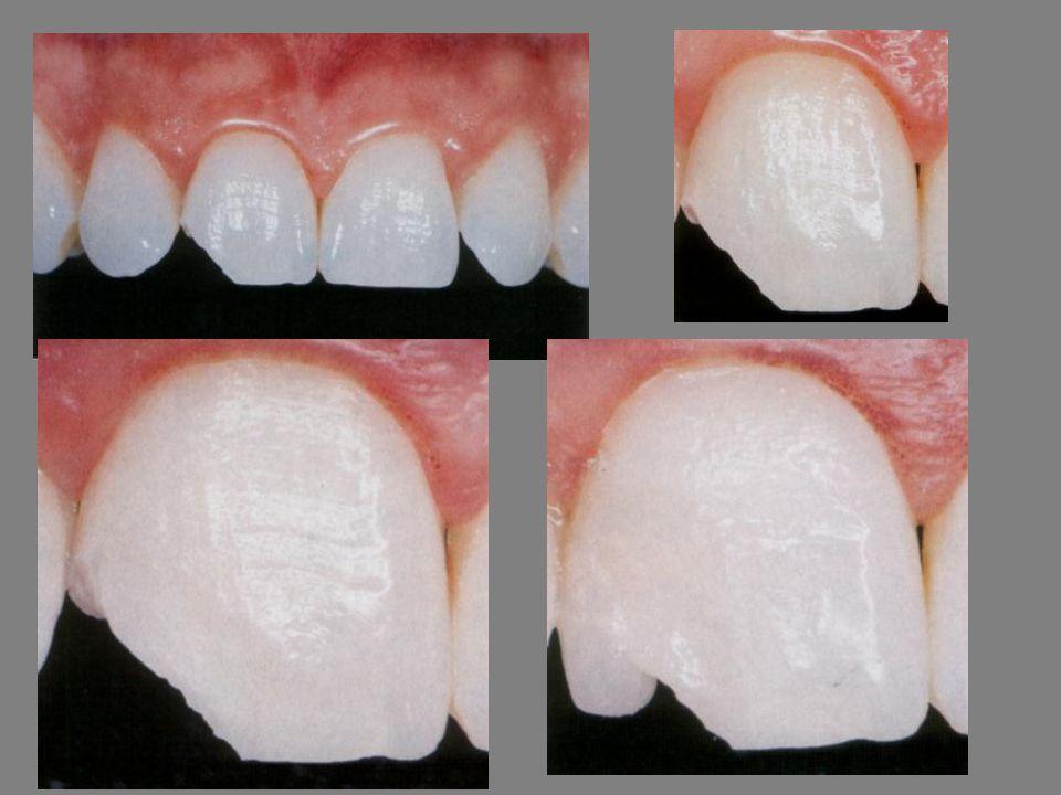 Molaris fogak helyreállításának modern technikái Molaris fogak helyreállításának modern technikái Dr.