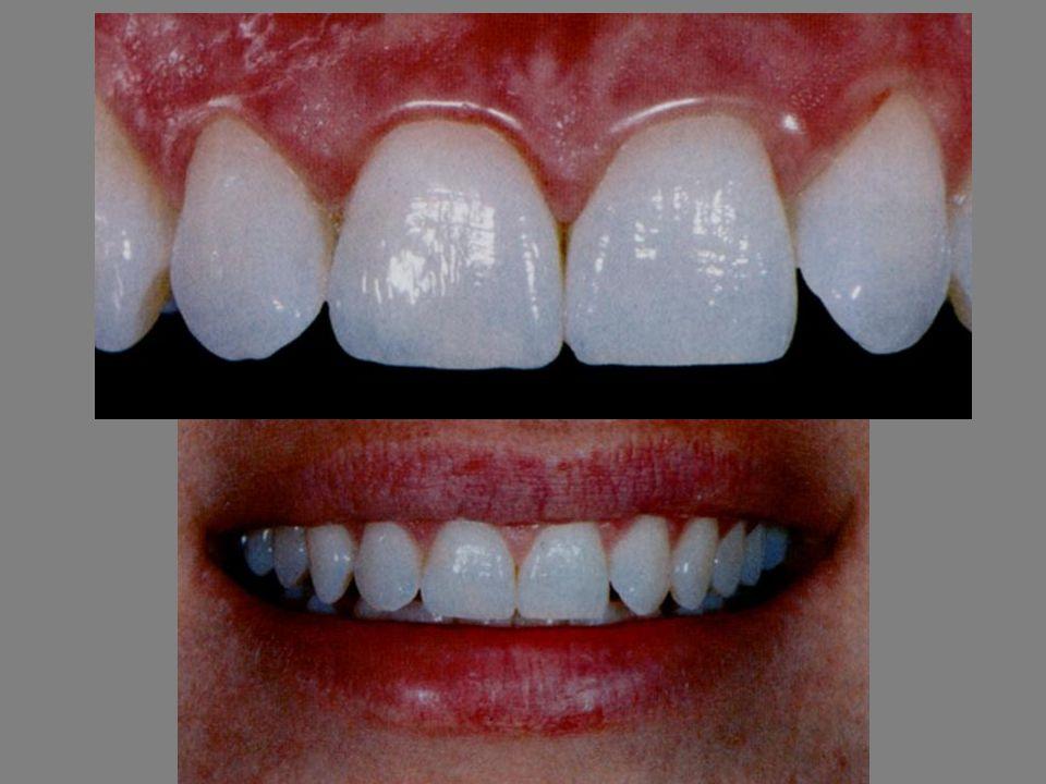 A fogat meghatározza a forma és a szín Forma: alak, méret, kontúr, makro és mikromorfológia