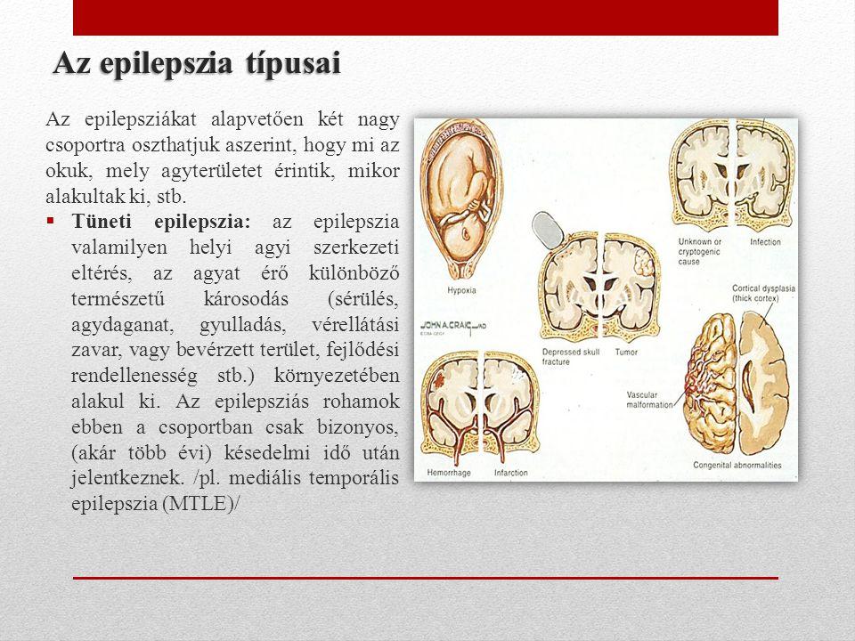• Idiopátiás epilepszia: itt nincs ilyen előzetes agyszerkezeti eltérés, az elváltozás genetikus eredetű, öröklődő /pl.