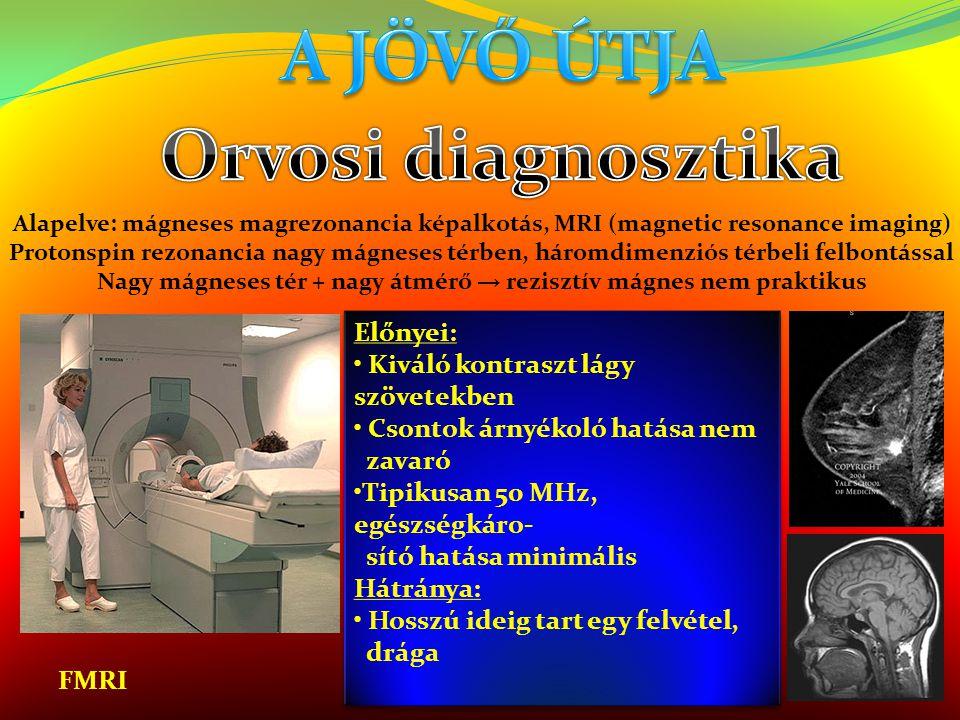 Előnyei: • Kiváló kontraszt lágy szövetekben • Csontok árnyékoló hatása nem zavaró •Tipikusan 50 MHz, egészségkáro- sító hatása minimális Hátránya: •
