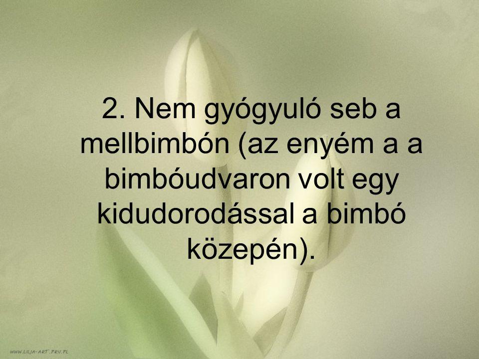 2. Nem gyógyuló seb a mellbimbón (az enyém a a bimbóudvaron volt egy kidudorodással a bimbó közepén).