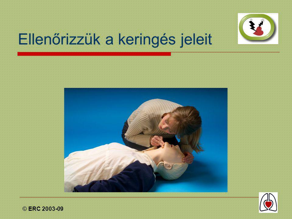 © ERC 2003-09 Ellenőrizzük a keringés jeleit