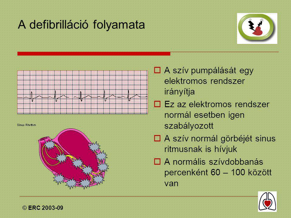 © ERC 2003-09 A defibrilláció folyamata  A szív pumpálását egy elektromos rendszer irányítja  Ez az elektromos rendszer normál esetben igen szabályozott  A szív normál görbéjét sinus ritmusnak is hívjuk  A normális szívdobbanás percenként 60 – 100 között van