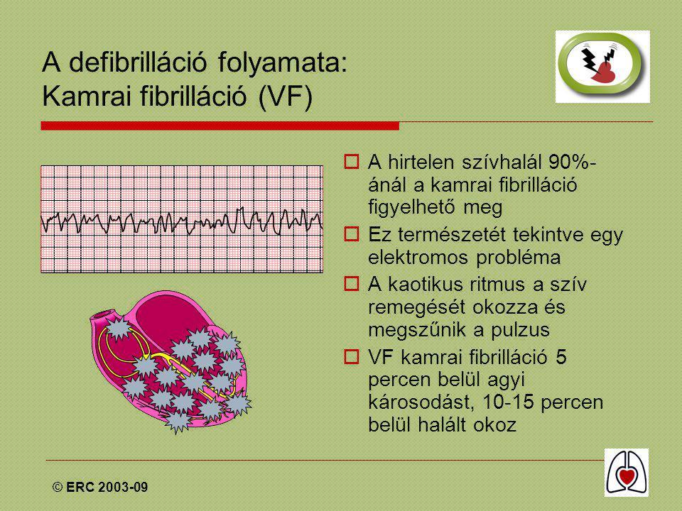 © ERC 2003-09 A defibrilláció folyamata: Kamrai fibrilláció (VF)  A hirtelen szívhalál 90%- ánál a kamrai fibrilláció figyelhető meg  Ez természetét tekintve egy elektromos probléma  A kaotikus ritmus a szív remegését okozza és megszűnik a pulzus  VF kamrai fibrilláció 5 percen belül agyi károsodást, 10-15 percen belül halált okoz