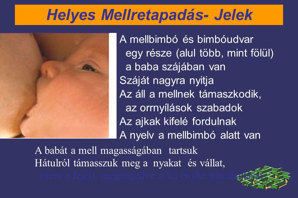 Helyes Mellretapadás- Jelek A mellbimbó és bimbóudvar egy része (alul több, mint fölül) a baba szájában van Száját nagyra nyitja Az áll a mellnek támaszkodik, az orrnyílások szabadok Az ajkak kifelé fordulnak A nyelv a mellbimbó alatt van A babát a mell magasságában tartsuk Hátulról támasszuk meg a nyakat és vállat, (nem a fejet), megengedve a fej enyhe hátrahajlását