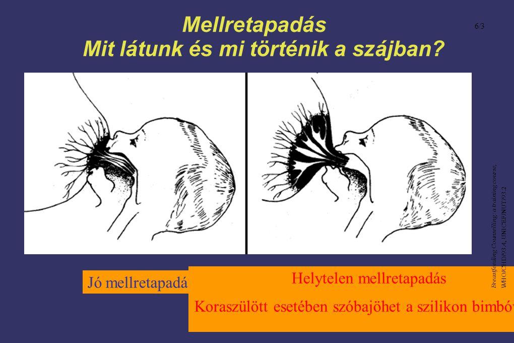 Mellretapadás Mit látunk és mi történik a szájban? Jó mellretapadás Helytelen mellretapadás Koraszülött esetében szóbajöhet a szilikon bimbóvédő 6/3 B
