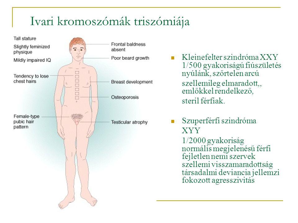 Ivari kromoszómák triszómiája  Kleinefelter szindróma XXY 1/500 gyakoriságú fiúszületés nyúlánk, szőrtelen arcú szellemileg elmaradott,, emlőkkel ren