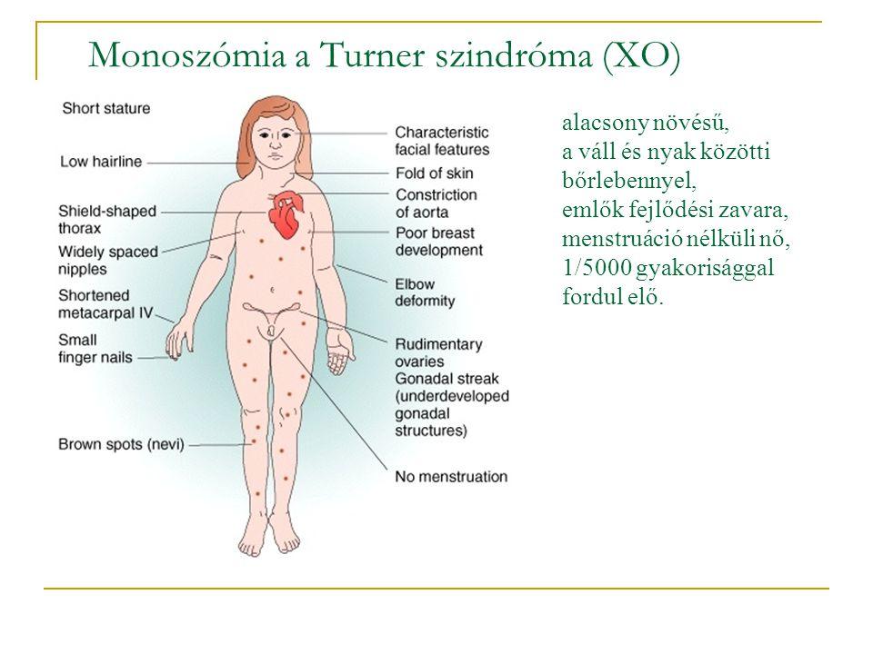 Monoszómia a Turner szindróma (XO) alacsony növésű, a váll és nyak közötti bőrlebennyel, emlők fejlődési zavara, menstruáció nélküli nő, 1/5000 gyakor