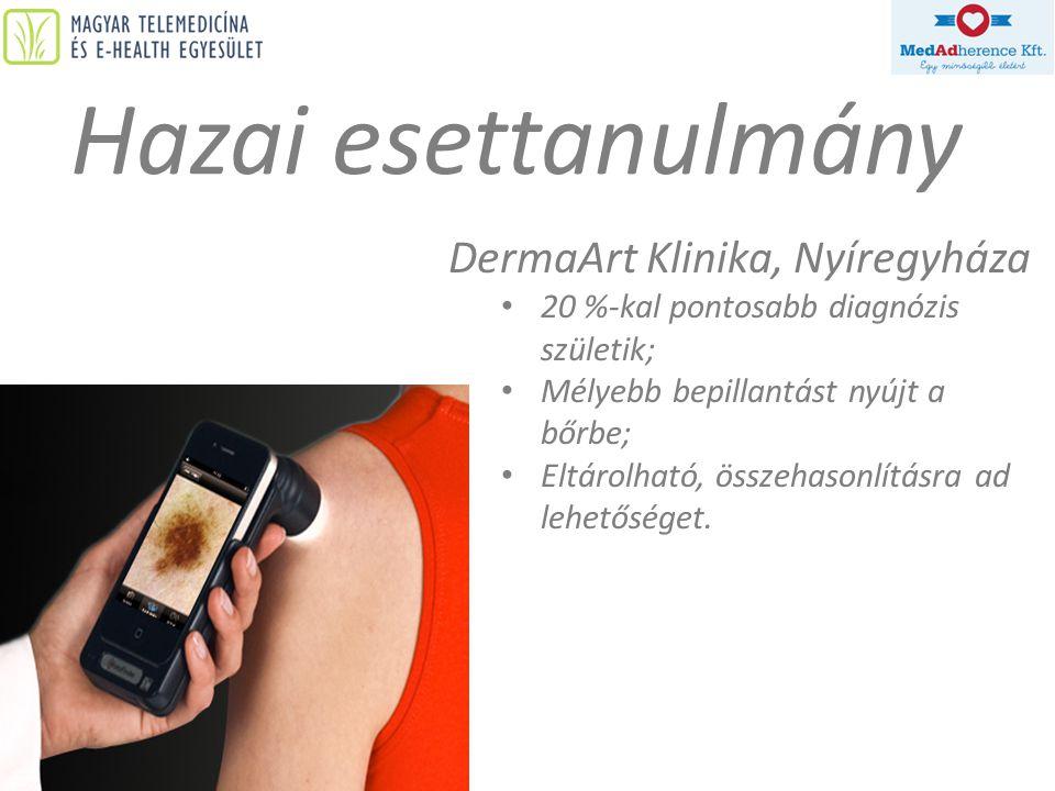 Hazai esettanulmány DermaArt Klinika, Nyíregyháza • 20 %-kal pontosabb diagnózis születik; • Mélyebb bepillantást nyújt a bőrbe; • Eltárolható, összeh