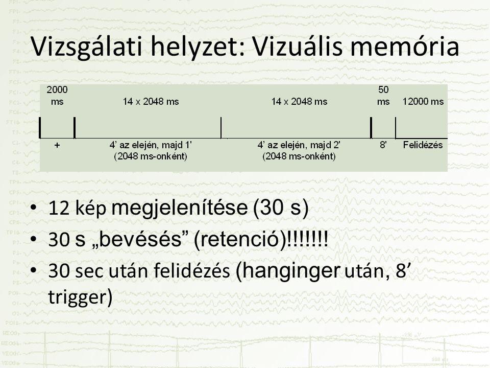 """Vizsgálati helyzet: Vizuális memória • 12 kép megjelenítése (30 s) • 30 s """"bevésés"""" (retenció)!!!!!!! • 30 sec után felidézés (hanginger után, 8' trig"""