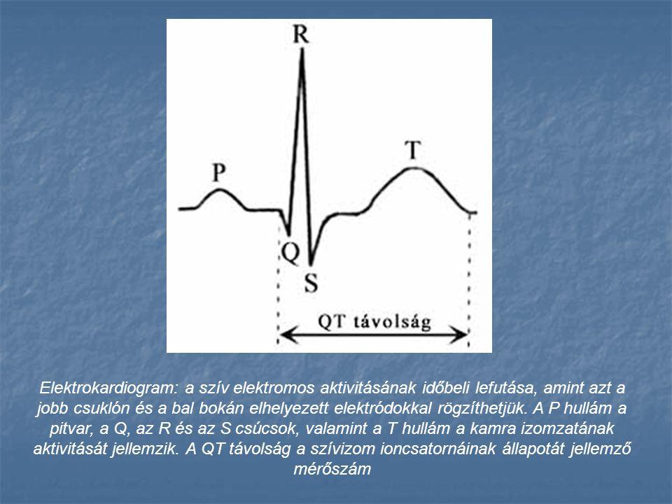 Elektrokardiogram: a szív elektromos aktivitásának időbeli lefutása, amint azt a jobb csuklón és a bal bokán elhelyezett elektródokkal rögzíthetjük. A