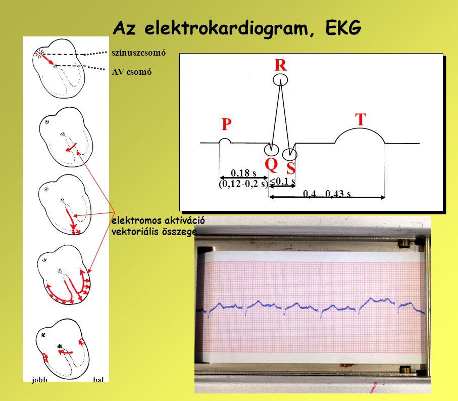 P R Q S T  0,1 s 0,4 - 0,43 s 0,18 s (0,12-0,2 s) Az elektrokardiogram, EKG szinuszcsomó AV csomó jobbbal elektromos aktiváció vektoriális összege