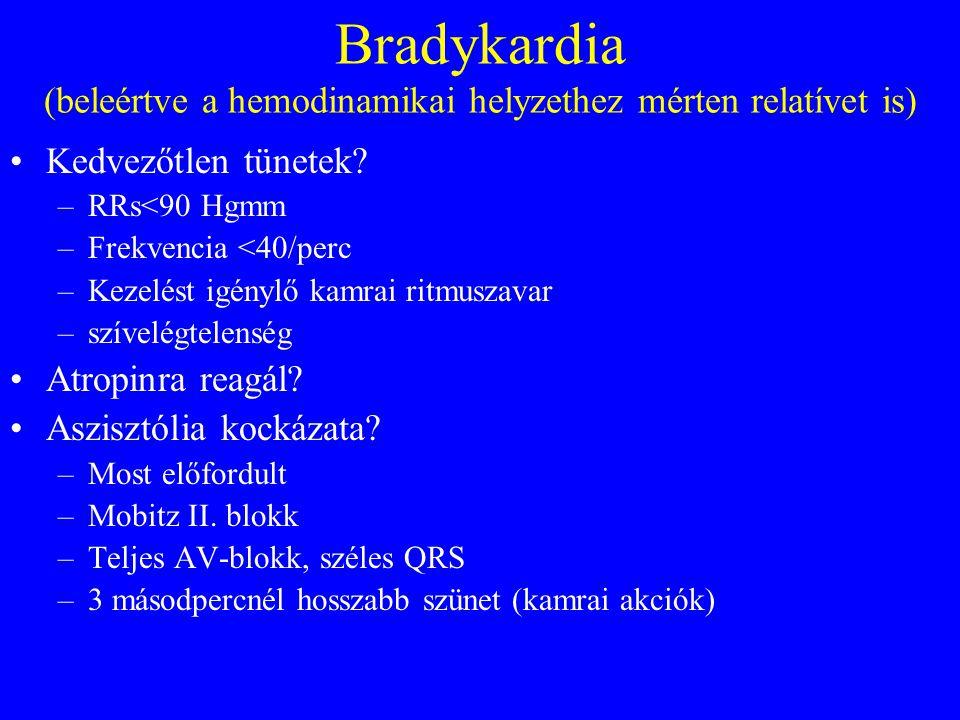 Bradykardia (beleértve a hemodinamikai helyzethez mérten relatívet is) •Kedvezőtlen tünetek.