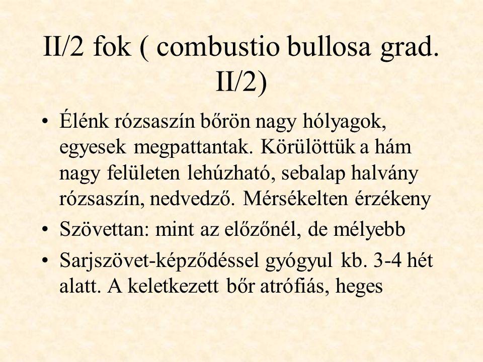 II/2 fok ( combustio bullosa grad. II/2) •Élénk rózsaszín bőrön nagy hólyagok, egyesek megpattantak. Körülöttük a hám nagy felületen lehúzható, sebala