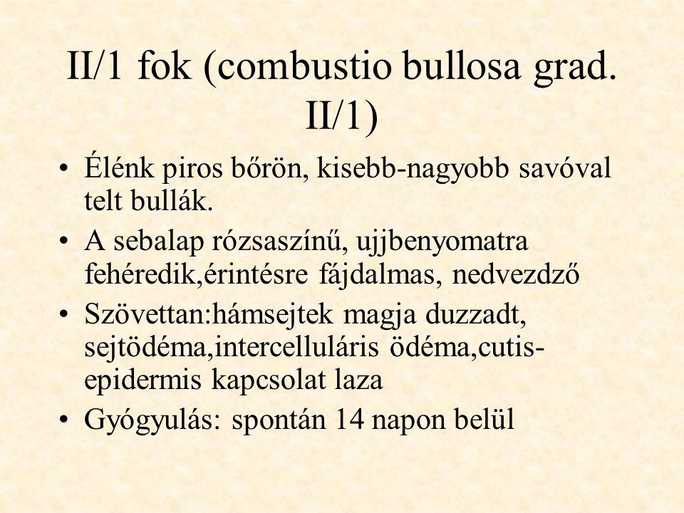 II/1 fok (combustio bullosa grad. II/1) •Élénk piros bőrön, kisebb-nagyobb savóval telt bullák. •A sebalap rózsaszínű, ujjbenyomatra fehéredik,érintés
