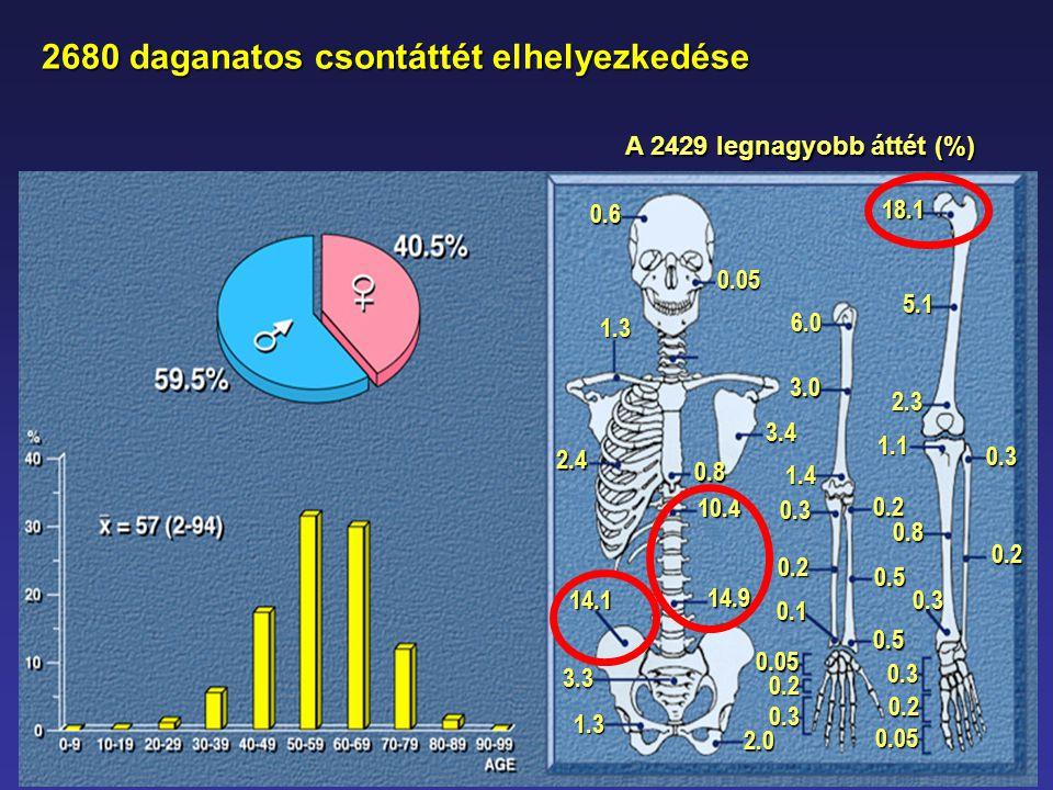 2680 daganatos csontáttét elhelyezkedése 2680 daganatos csontáttét elhelyezkedése 0.6 2.4 1.3 18.1 0.5 0.5 0.2 0.3 0.2 0.05 0.1 0.2 0.3 1.4 3.0 6.0 2.