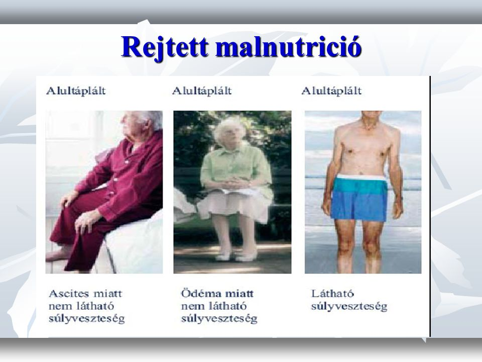 Rejtett malnutrició