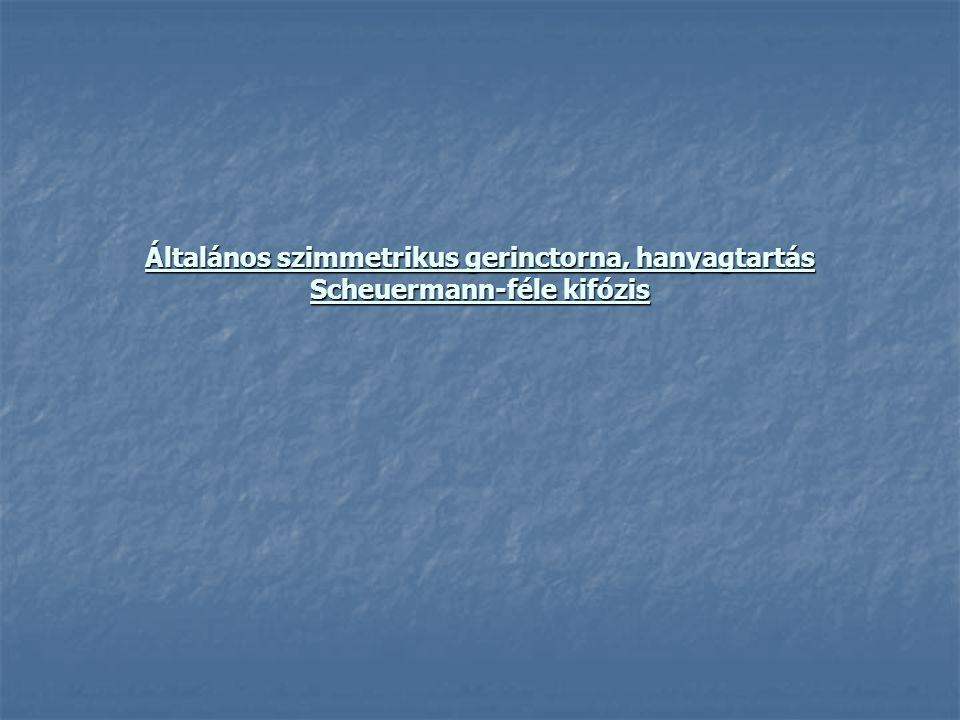 Általános szimmetrikus gerinctorna, hanyagtartás Scheuermann-féle kifózis