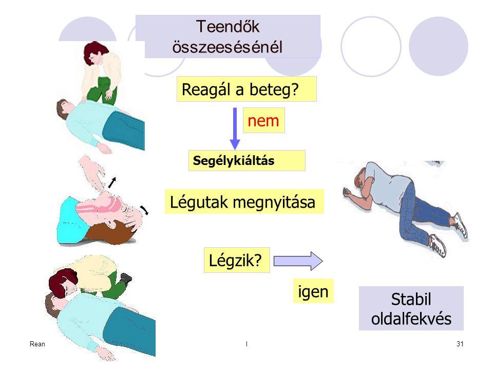 Reanimatológial31 Teendők összeesésénél Reagál a beteg? nem Segélykiáltás Légutak megnyitása Légzik? igen Stabil oldalfekvés