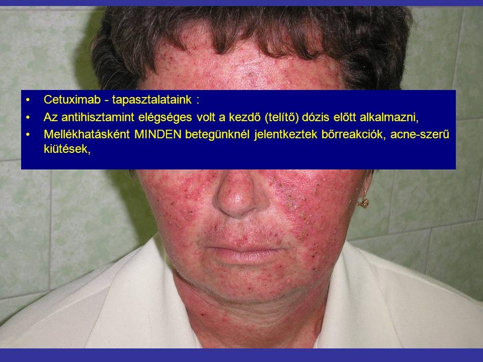 •Cetuximab - tapasztalataink : •Az antihisztamint elégséges volt a kezdő (telítő) dózis előtt alkalmazni, •Mellékhatásként MINDEN betegünknél jelentke