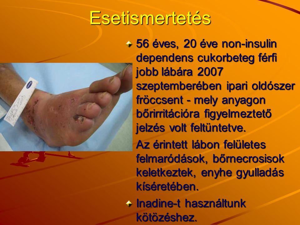 Esetismertetés 56 éves, 20 éve non-insulin dependens cukorbeteg férfi jobb lábára 2007 szeptemberében ipari oldószer fröccsent - mely anyagon bőrirrit