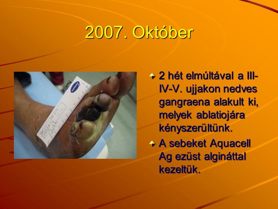 2007. Október 2 hét elmúltával a III- IV-V. ujjakon nedves gangraena alakult ki, melyek ablatiojára kényszerültünk. A sebeket Aquacell Ag ezüst alginá