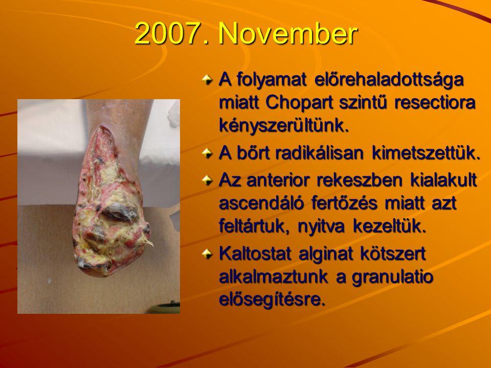 2007. November A folyamat előrehaladottsága miatt Chopart szintű resectiora kényszerültünk. A bőrt radikálisan kimetszettük. Az anterior rekeszben kia