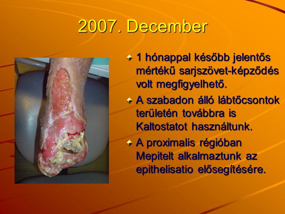 2007. December 1 hónappal később jelentős mértékű sarjszövet-képződés volt megfigyelhető. A szabadon álló lábtőcsontok területén továbbra is Kaltostat