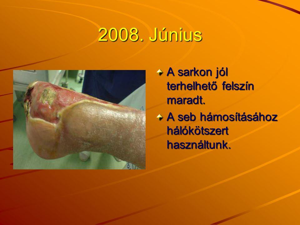 2008. Június A sarkon jól terhelhető felszín maradt. A seb hámosításához hálókötszert használtunk.