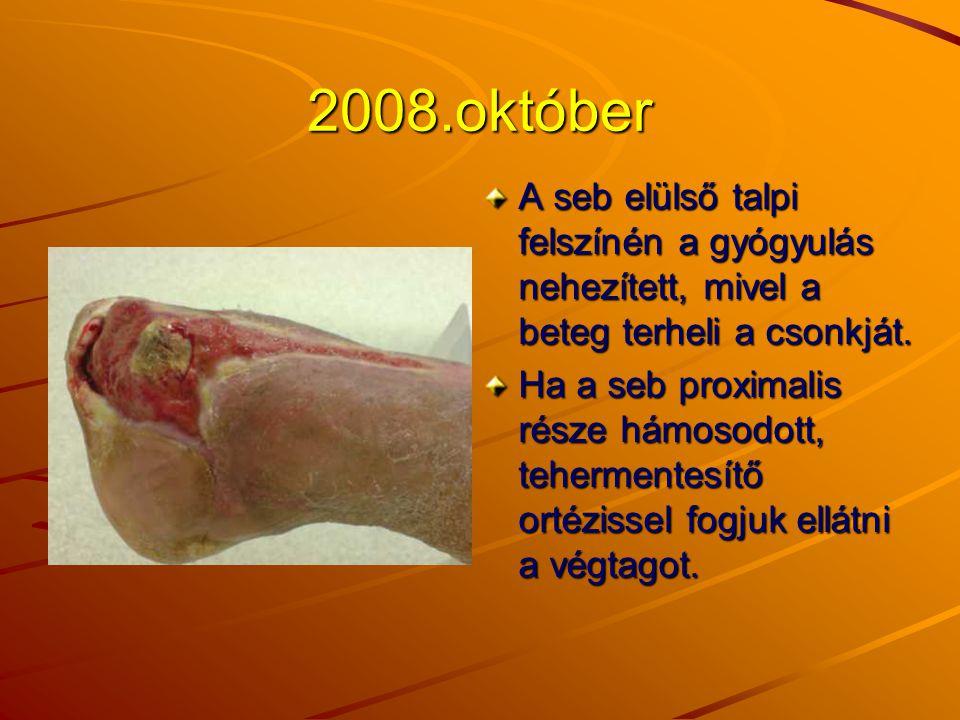 2008.október A seb elülső talpi felszínén a gyógyulás nehezített, mivel a beteg terheli a csonkját. Ha a seb proximalis része hámosodott, tehermentesí