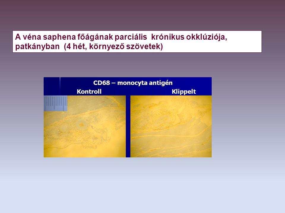 A véna saphena főágának parciális krónikus okklúziója, patkányban (4 hét, környező szövetek)