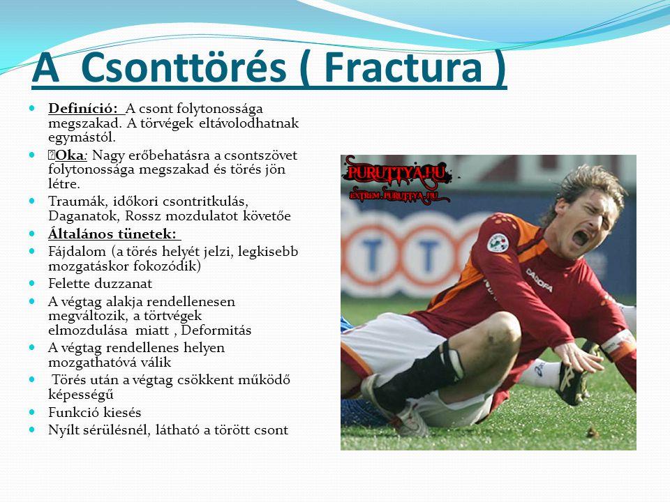 A Csonttörés ( Fractura )  Definíció: A csont folytonossága megszakad. A törvégek eltávolodhatnak egymástól.   Oka: Nagy erőbehatásra a csontszövet
