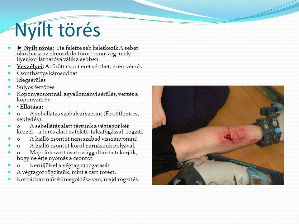 Nyílt törés  ► Nyílt törés: Ha felette seb keletkezik A sebet okozhatja az elmozduló törött csontvég, mely ilyenkor láthatóvá válik a sebben.  Veszé