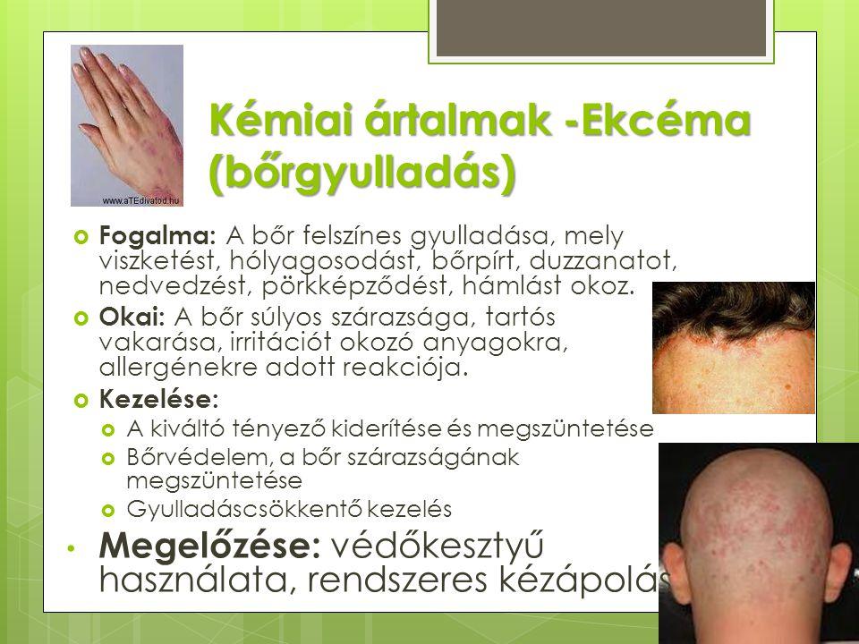 Kémiai ártalmak -Ekcéma (bőrgyulladás)  Fogalma: A bőr felszínes gyulladása, mely viszketést, hólyagosodást, bőrpírt, duzzanatot, nedvedzést, pörkképződést, hámlást okoz.