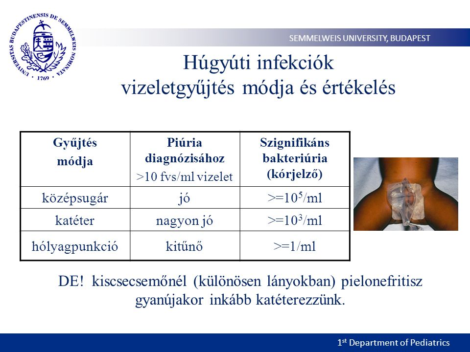 1 st Department of Pediatrics SEMMELWEIS UNIVERSITY, BUDAPEST Húgyúti infekciók vizeletgyűjtés módja és értékelés Gyűjtés módja Piúria diagnózisához >10 fvs/ml vizelet Szignifikáns bakteriúria (kórjelző) középsugárjó>=10 5 /ml katéternagyon jó>=10 3 /ml hólyagpunkciókitűnő>=1/ml DE.