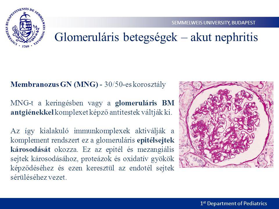 1 st Department of Pediatrics SEMMELWEIS UNIVERSITY, BUDAPEST Membranozus GN (MNG) - 30/50-es korosztály MNG-t a keringésben vagy a glomeruláris BM antgiénekkel komplexet képző antitestek váltják ki.