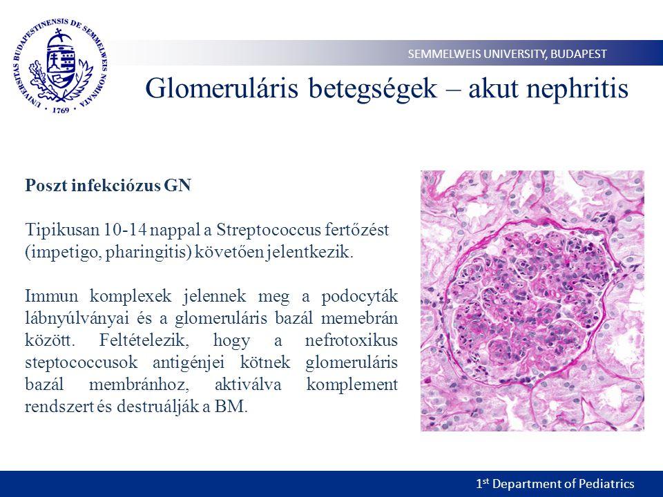 1 st Department of Pediatrics SEMMELWEIS UNIVERSITY, BUDAPEST Glomeruláris betegségek – akut nephritis Poszt infekciózus GN Tipikusan 10-14 nappal a Streptococcus fertőzést (impetigo, pharingitis) követően jelentkezik.