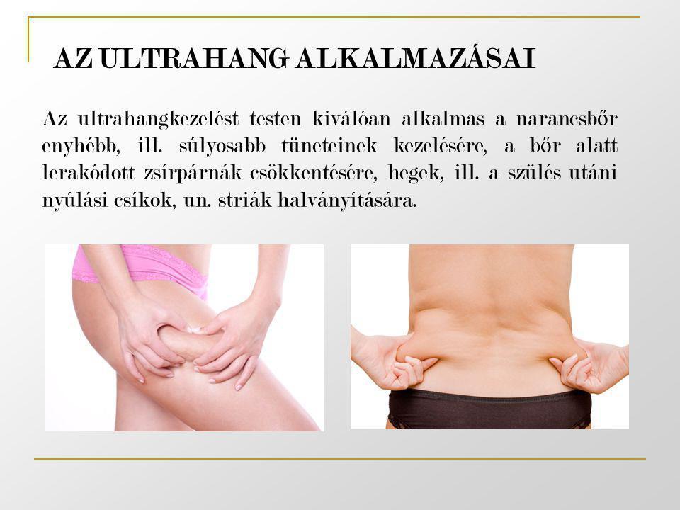 AZ ULTRAHANG ALKALMAZÁSAI Az ultrahangkezelést testen kiválóan alkalmas a narancsb ő r enyhébb, ill. súlyosabb tüneteinek kezelésére, a b ő r alatt le