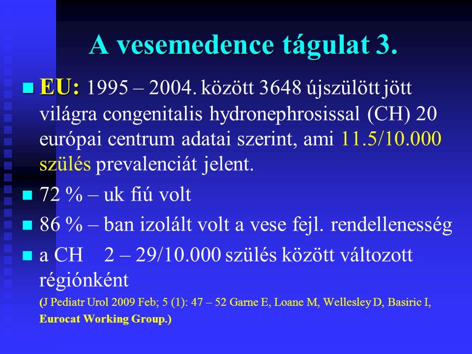 A vesemedence tágulat 3. n EU: n EU: 1995 – 2004. között 3648 újszülött jött világra congenitalis hydronephrosissal (CH) 20 európai centrum adatai sze