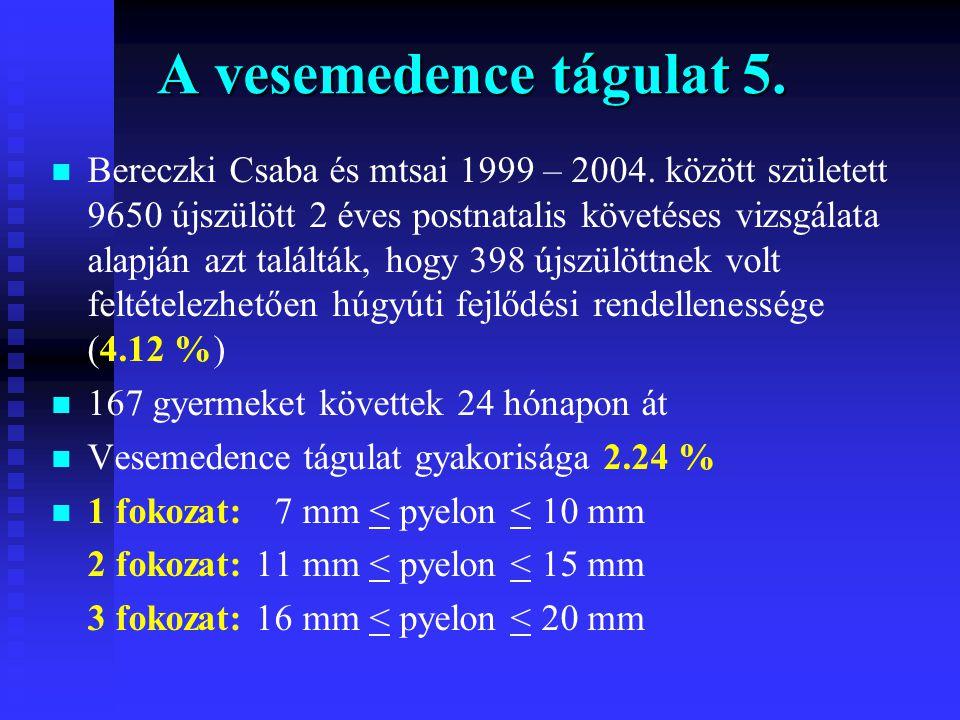 A vesemedence tágulat 5. n n Bereczki Csaba és mtsai 1999 – 2004. között született 9650 újszülött 2 éves postnatalis követéses vizsgálata alapján azt
