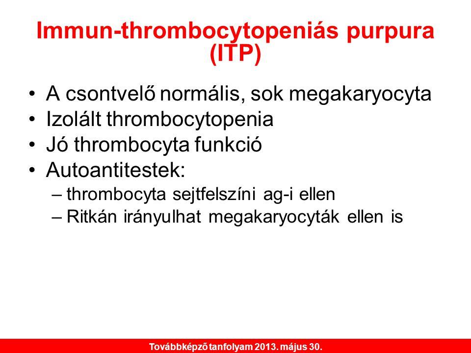 Továbbképző tanfolyam 2013. május 30. Immun-thrombocytopeniás purpura (ITP) •A csontvelő normális, sok megakaryocyta •Izolált thrombocytopenia •Jó thr