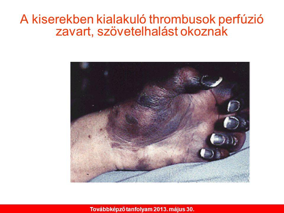 Továbbképző tanfolyam 2013. május 30. A kiserekben kialakuló thrombusok perfúzió zavart, szövetelhalást okoznak