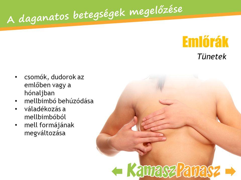 • csomók, dudorok az emlőben vagy a hónaljban • mellbimbó behúzódása • váladékozás a mellbimbóból • mell formájának megváltozása Emlőrák Tünetek