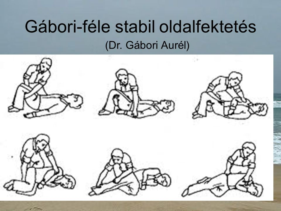 Gábori-féle stabil oldalfektetés (Dr. Gábori Aurél)