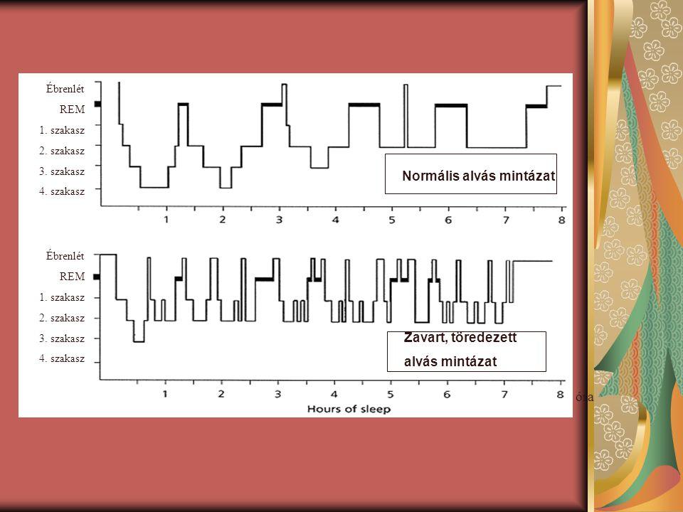 Normális alvás mintázat Zavart, töredezett alvás mintázat óra Ébrenlét REM 1. szakasz 2. szakasz 3. szakasz 4. szakasz Ébrenlét REM 1. szakasz 2. szak