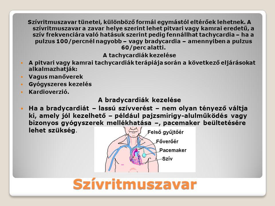A szívbillentyűk betegségei  Veleszületett szívbillentyűhibák: Modern ultrahangkészülékkel már magzati korban kimutatható az elváltozás, mely az esetek nagy részében csecsemő- vagy kisgyermekkorban műtéti úton jól kezelhető.