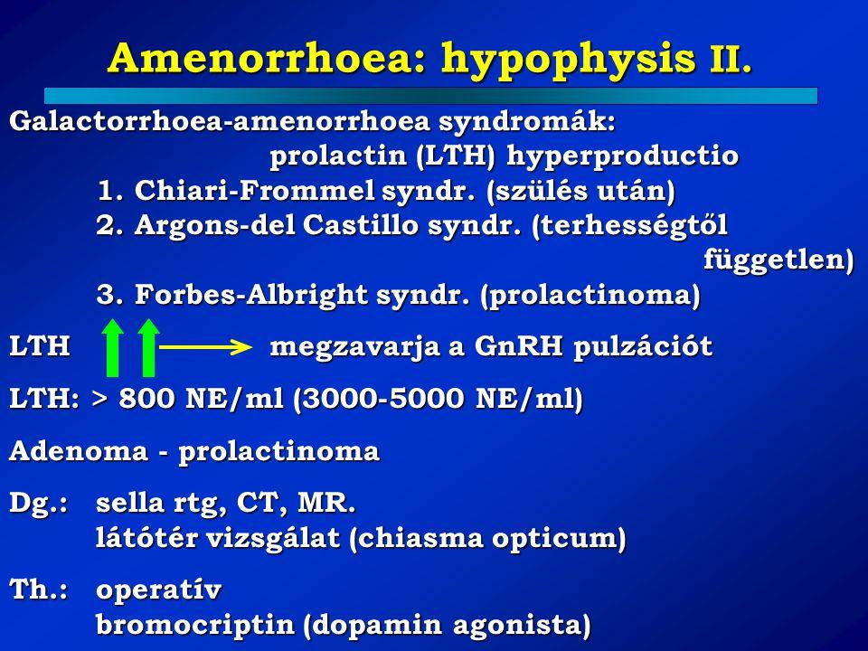 Amenorrhoea: hypophysis II. Galactorrhoea-amenorrhoea syndromák: prolactin (LTH) hyperproductio 1. Chiari-Frommel syndr. (szülés után) 2. Argons-del C